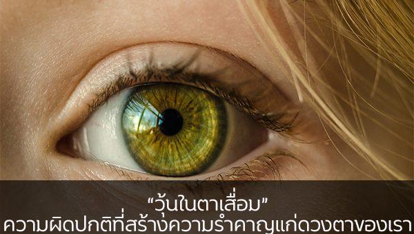 """""""วุ้นในตาเสื่อม"""" ความผิดปกติที่สร้างความรำคาญแก่ดวงตาของเรา ข่าวสาร ความรู้ สุขภาพ ครอบครัว กีฬา ออกกำลังกาย วุ้นในตาเสื่อม"""