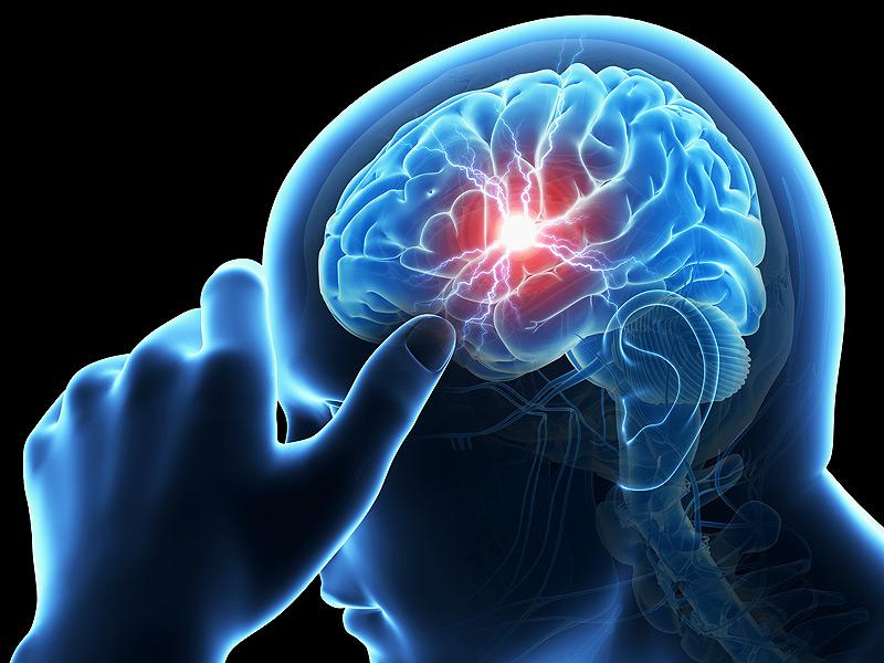 """""""ภัยเงียบ"""" โรคหลอดเลือดสมองในผู้สูงอายุ อย่าปล่อยไว้ ข่าวสาร ความรู้ สุขภาพ ครอบครัว กีฬา ออกกำลังกาย โรคหลอดเลือดสมอง"""